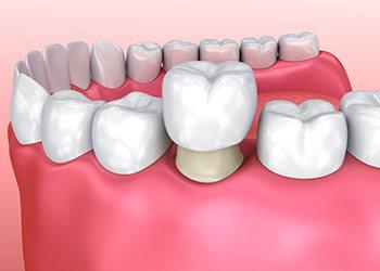 dental crowns in Kendall