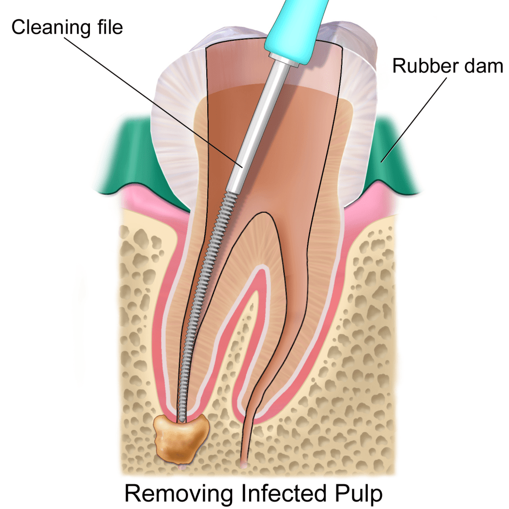 dentist near me. Root Canal