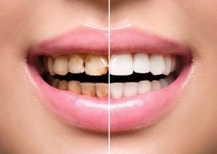 Cosmetic Dentistry in Kendall