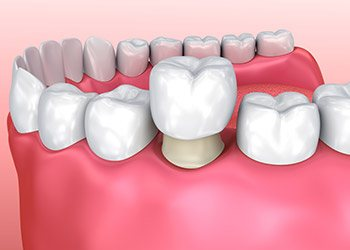 dental crowns in Kendall
