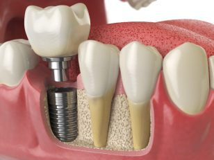 Tooth dental implant in human denture