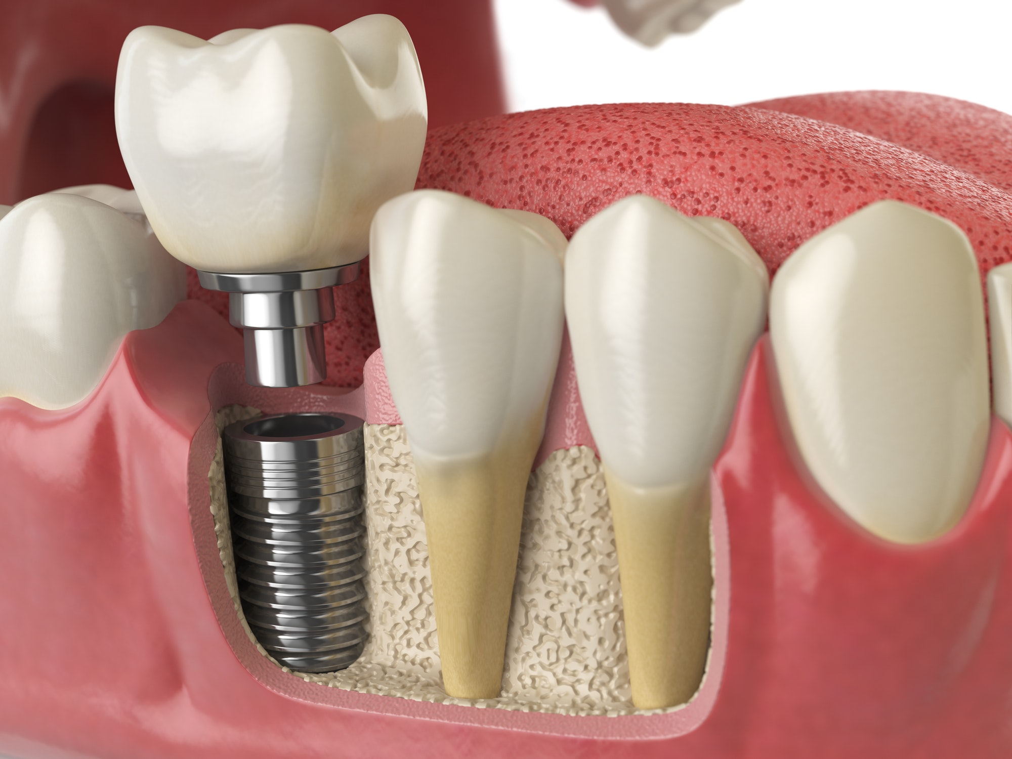 ooth dental implant in human denture